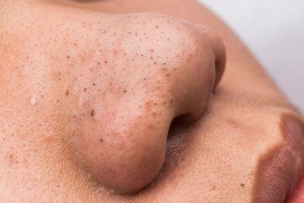 Mitesser Entfernen Was Hilft Am Besten Hautinfo