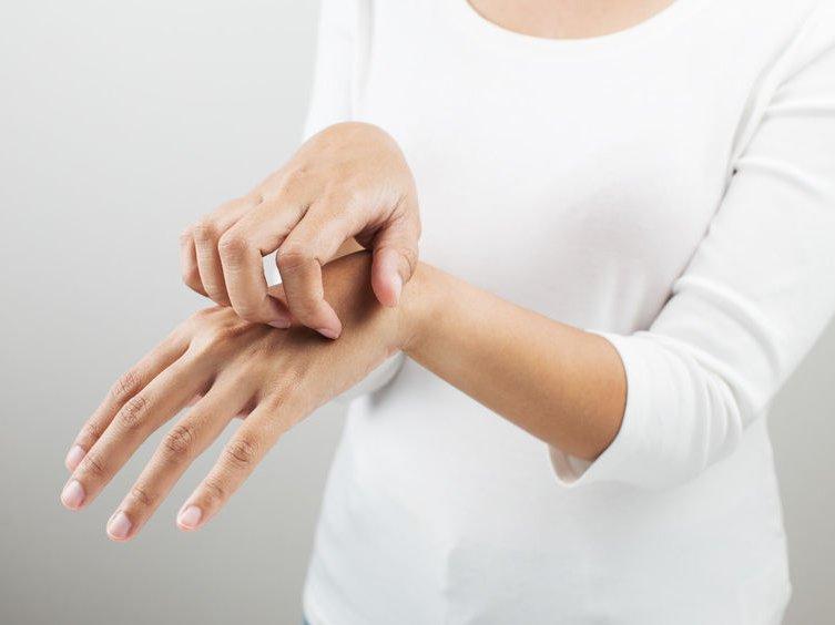 Ansteckend dyshidrose Jarnik®: Haut